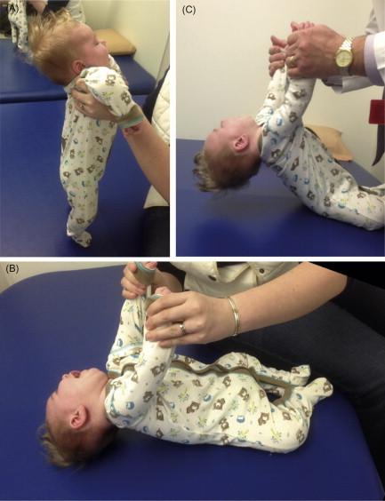 Neonatal Hypotonia
