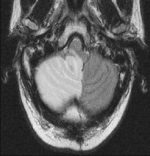 Inheritable Genetic Variations Predisposing to CNS Tumors