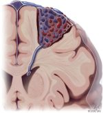 Cranial Arteriovenous Malformation Embolization