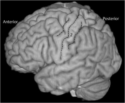 11 Cortical Resection Central Region Neupsy Key The lateral postcentral gyrus is a prominent structure in the parietal lobe of the human brain. 11 cortical resection central region