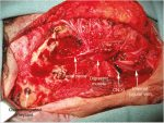 21 Tumors of the Temporal Bone