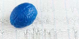 Pracownia EEG