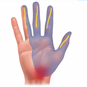 Illustration of hand with nerves