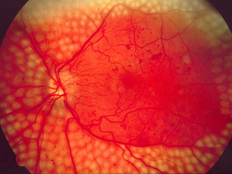 Google AI Matches Diabetic Retinopathy Screens