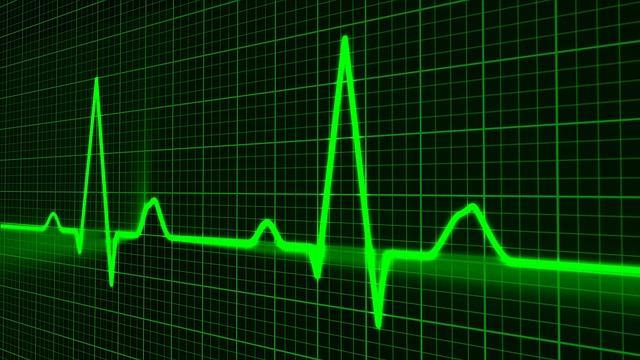 New algorithm uses deep learning to diagnose heart arrhythmias