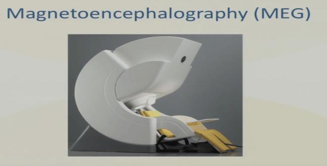 magnetoencelographie