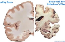 alzheimers-disease-healthy-brain-versus-severe-public