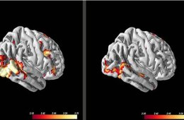 anxiety-patients-response-visual-processing-brain