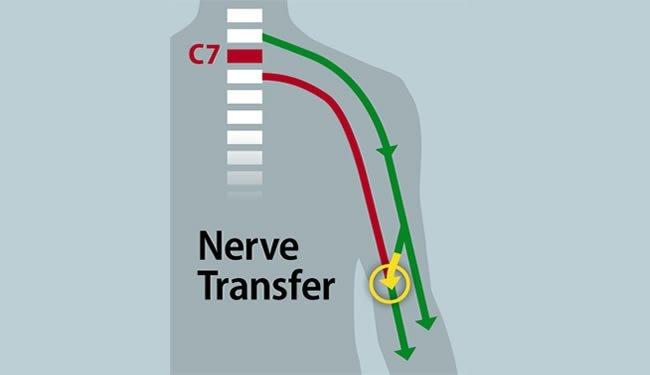 nerve-transfer-restore-hand