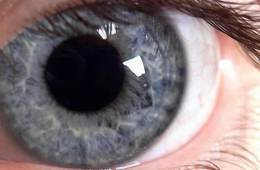 An eyeball is shown.