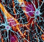 Neurons are shown.