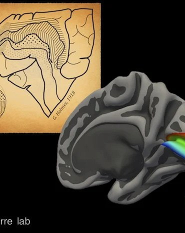 A brain image is next to a drawing of a 1918 brain map.