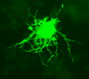 The image shows an oligodendrocyte transfected with GFP (Green Fluorescent Protein).