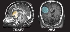 The image shows scans of brains with tumors.
