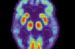 The image shows a PET scan of a brain of a person with Alzheimer's disease.