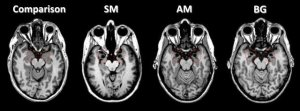 The image shows brain scans of damage to the amgydala. The caption explains this best.