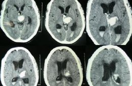 The image is a CT scan of intracerebral hemorrhage.