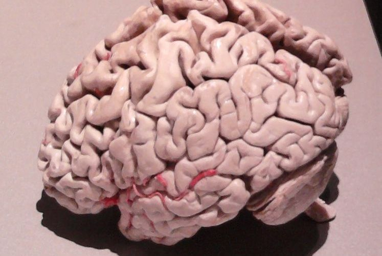 The image is a plastinated brain of a person with Alzheimer's disease.