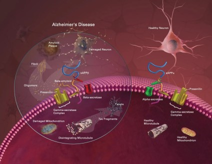 The image is a diagram comparing the difference between neuron damage and associated damage in alzheimer's disease with normal neurons.