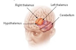 The image shows a drawing of the brain with the hypothalamus marked by an arrow and highlighted in orange.