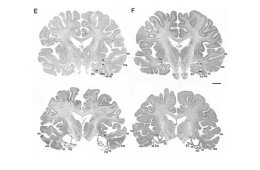 The image shows four brain slices with temporal lobe damage.