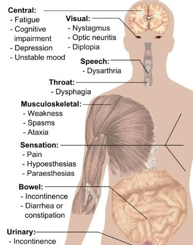 The diagram shows the symptoms of MS and the human body.