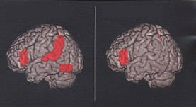 The brain scan image shows the regions affected by dyslexia.