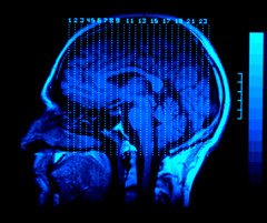The image shows a brain scan of a person with TBI.