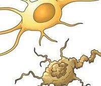 The illustration shows a neuron undergoing apoptosis.