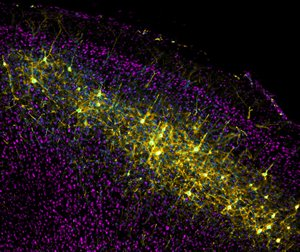 The microscope image shows nerve cells in the mouse brain that have been labeled with a modified rabies virus.