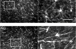 the pictures show NG2-expressing OPC in healthy nerve tissue.
