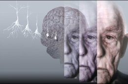 This image shows the brain of an older man, along with an image of an elderly male.