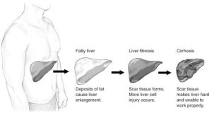 The image shows the different stages of liver damage.