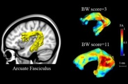 This is an image of the brain scans taken for this study.