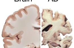 The image shows a normal brain slice and a brain slice of with severe AD.