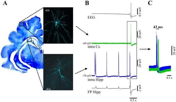 This image shows ortical and hippocampal neuronal activity during νC state. The caption best describes the image.