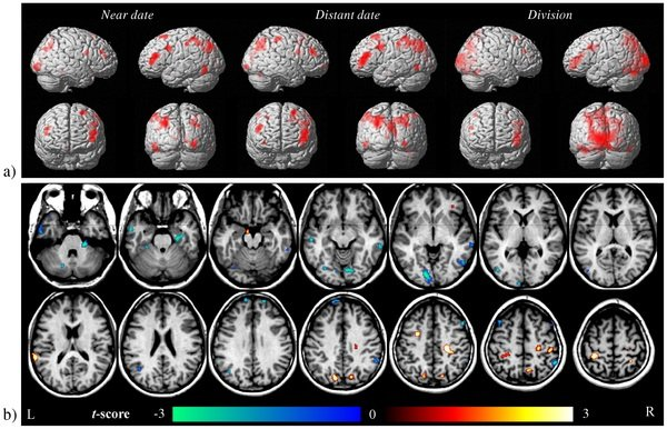 The image shows the brain scans associated with the research. The caption best describes the image.