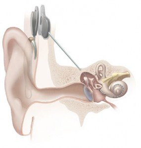 This is an illustration of a cochlear implant.
