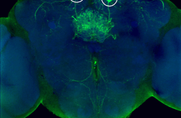 The image shows the neurons in the fruit fly. The caption best describes the image.