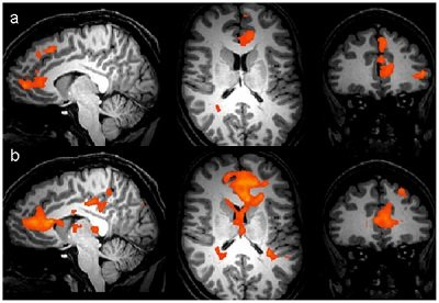 These fMRI scans are taken from the research paper.