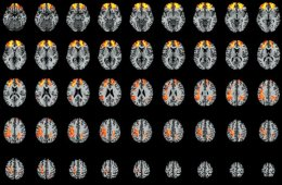 The image shows the brain scan associated with the research.