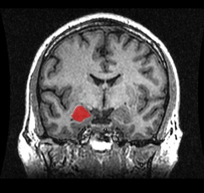 This mri scan shows the location of the amygdala.