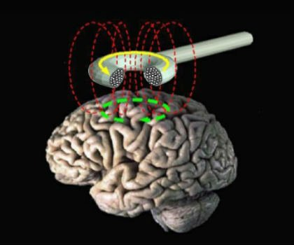 The image shows tms being applied to the brain.