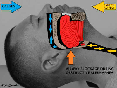 This is a diagram of how sleep apnea affects a person.