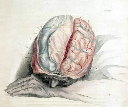 The image shows a sleeping man with an exposed brain.