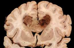 This is a brain slice of a person with glioblastoma multiforme.