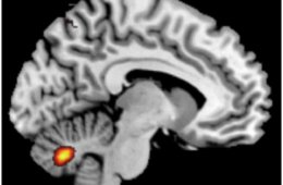 This is an fMRI scan which shows the location of the cerebellum in a schizophrenic patient.