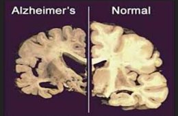 This image shows two brain slices, one with alzheimers and one of a normal brain.