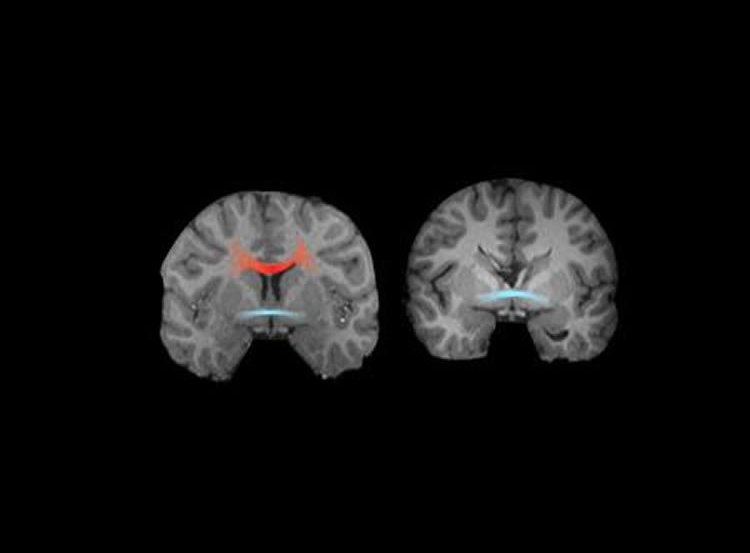 This shows MRI images from a neurotypical control (left) and an adult with complete agenesis of the corpus callosum (right).
