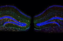 The image shows an hippocampal slice from a mouse. The caption best describes the image.